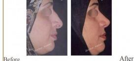 تفاوت جراحی بینی باز و بسته